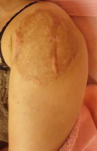 術後13ヶ月