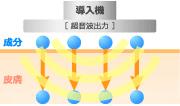 electroporation_img02