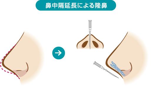 鼻中隔延長による隆鼻